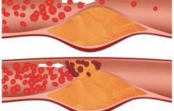 ما هو الكوليسترول الضار ؟